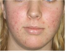 acne vulgaris pictures