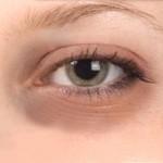 dark-circle-eyes