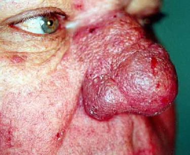 acne rosacea pictures