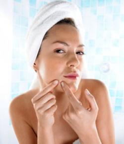 prevent pimples